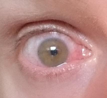 Steven Deschuyteneer Die lieve ogen die niet genezen help me wie kan uveïtis