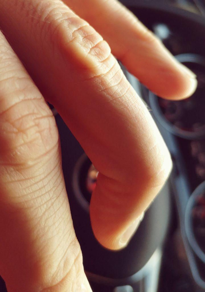 Steven Deschuyteneer Eindelijk ontlading na 6 weken onthouding mallet vinger