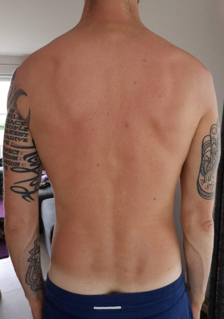 Steven Deschuyteneer Natuurlijke oplossing tegen zonnebrand rug
